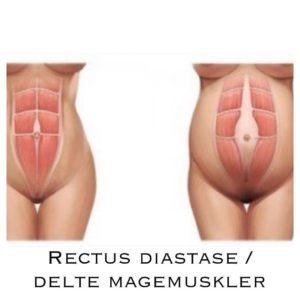 Delte magemuskler